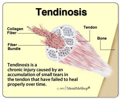 tendinosis-chronic-injury
